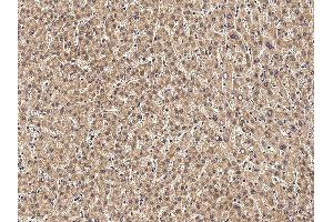 Immunohistochemistry (IHC) image for anti-Tumor Necrosis Factor Receptor Superfamily, Member 10d, Decoy with Truncated Death Domain (TNFRSF10D) (AA 1-211) antibody (ABIN1996725)