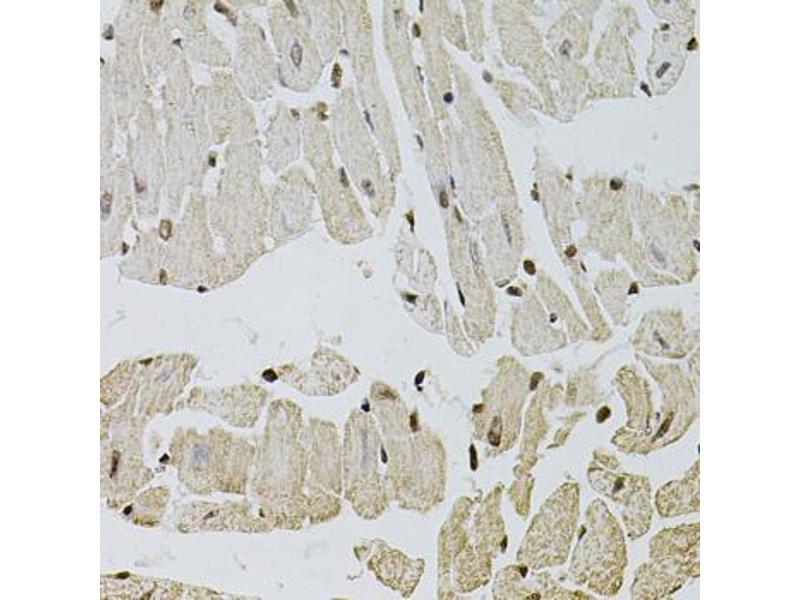 Image no. 6 for anti-Fibroblast Growth Factor 2 (Basic) (FGF2) antibody (ABIN1872685)