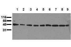 Western Blotting (WB) image for anti-MAP2K1 antibody (Mitogen-Activated Protein Kinase Kinase 1) (ABIN126837)