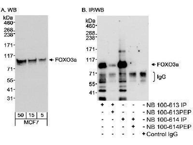 Image no. 1 for anti-Forkhead Box O3 (FOXO3) (C-Term) antibody (ABIN152045)