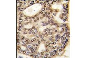 Image no. 1 for anti-Hepatoma-Derived Growth Factor (HDGF) (C-Term) antibody (ABIN358980)