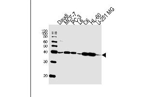 Image no. 1 for anti-CAMP Responsive Element Binding Protein 3-Like 4 (CREB3L4) (AA 1-300) antibody (ABIN4908306)