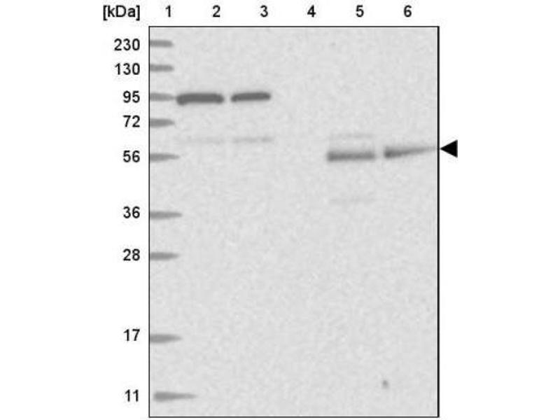 Western Blotting (WB) image for anti-REC8 Homolog (Yeast) (REC8) antibody (ABIN4349769)