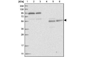 Western Blotting (WB) image for anti-REC8 抗体 (REC8 Homolog (Yeast)) (ABIN4349769)