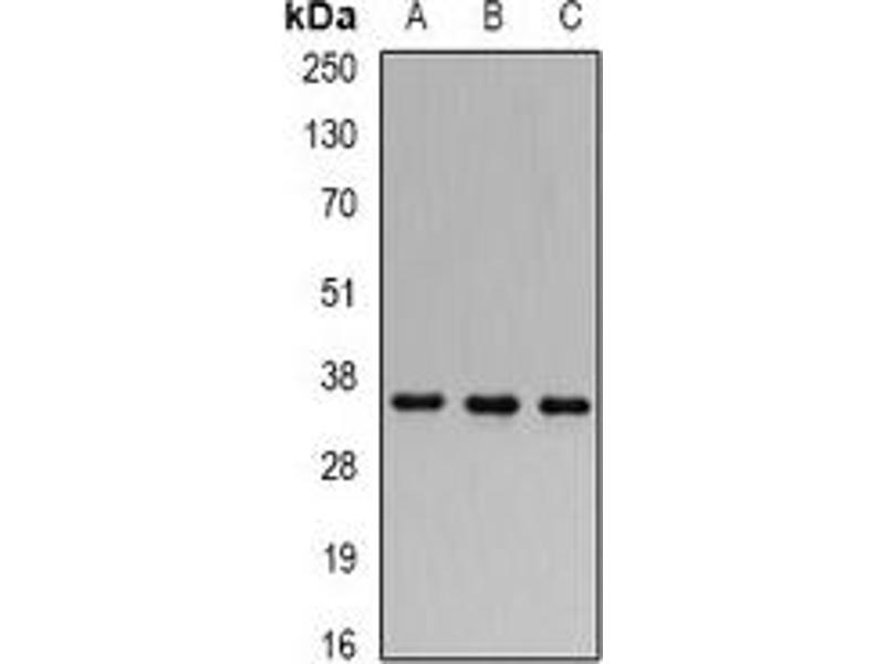 Western Blotting (WB) image for anti-Four and A Half LIM Domains 1 (FHL1) antibody (ABIN2966633)