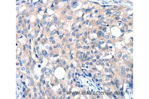 Image no. 1 for anti-Glutamate Receptor, Ionotropic, N-Methyl D-Aspartate 2D (GRIN2D) antibody (ABIN2431733)