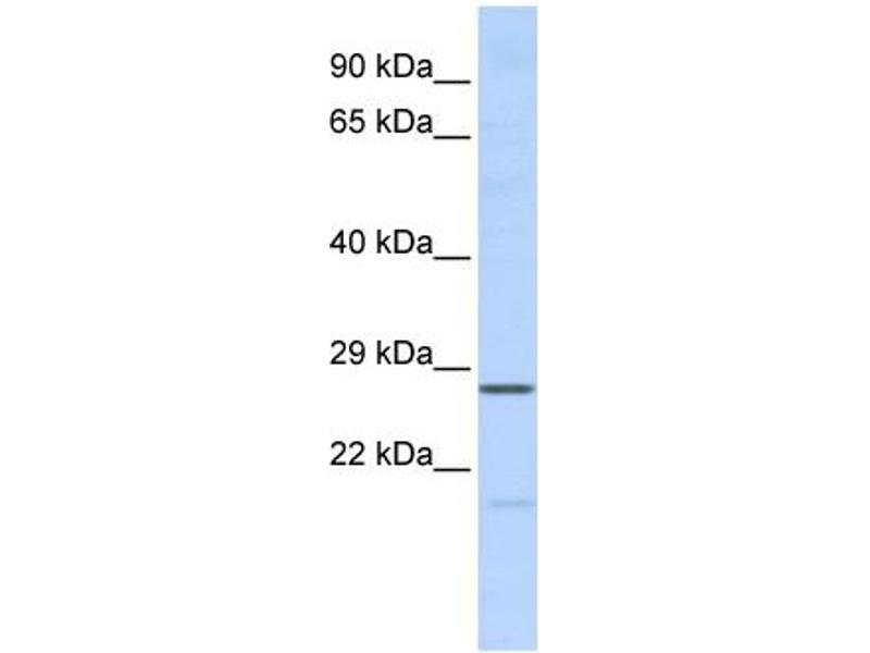 Western Blotting (WB) image for anti-Mediator Complex Subunit 6 (MED6) (Middle Region) antibody (ABIN2778336)