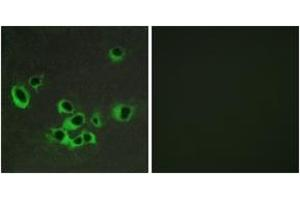 Immunofluorescence (IF) image for anti-Serotonin Receptor 2B antibody (HTR2B) (ABIN1535553)