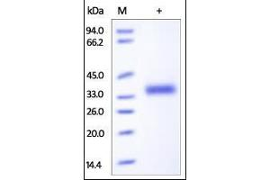 Image no. 1 for Interleukin 2 Receptor, beta (IL2RB) (AA 27-239) protein (His tag) (ABIN6559943)