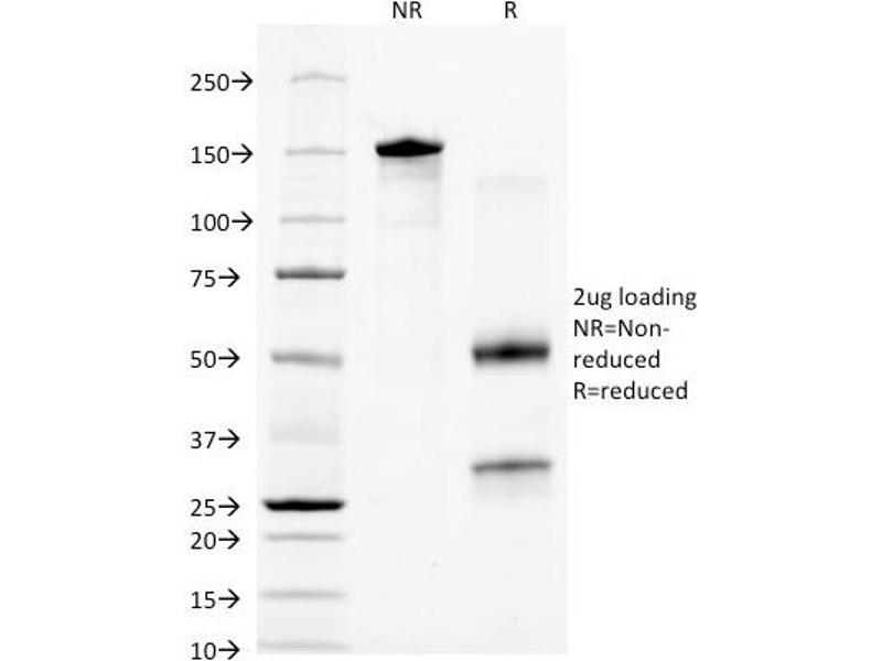 SDS-PAGE (SDS) image for anti-Keratin 18 (KRT18) antibody (ABIN6383865)