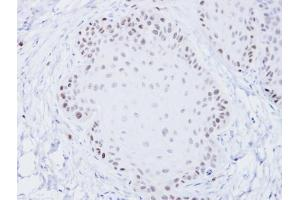Image no. 2 for anti-Bloom Syndrome RecQ Like Helicase (BLM) (C-Term) antibody (ABIN2855003)