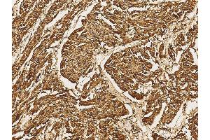 Immunohistochemistry (IHC) image for anti-MAP2K5 antibody (Mitogen-Activated Protein Kinase Kinase 5) (N-Term) (ABIN5507789)