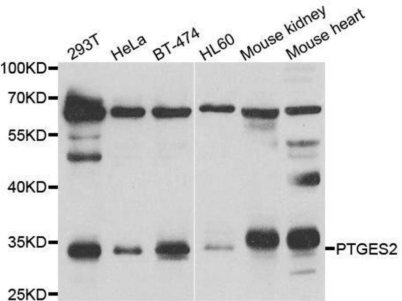 Western Blotting (WB) image for anti-Prostaglandin E Synthase 2 (PTGES2) antibody (ABIN6146404)