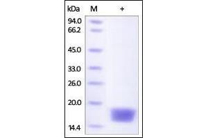 Image no. 1 for Cystatin SN (CST1) (AA 21-141) protein (His tag) (ABIN2180915)