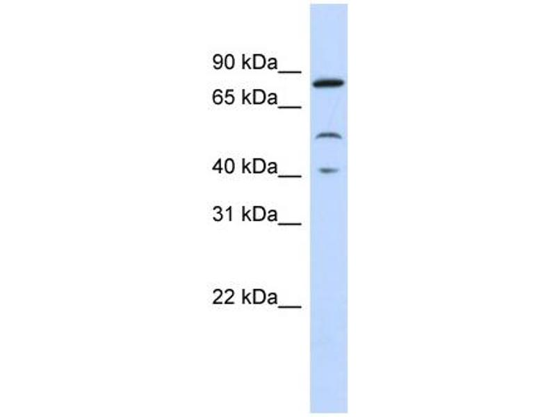 Western Blotting (WB) image for anti-Signal Transducer and Activator of Transcription 3 (Acute-Phase Response Factor) (STAT3) (Middle Region) antibody (ABIN2792239)