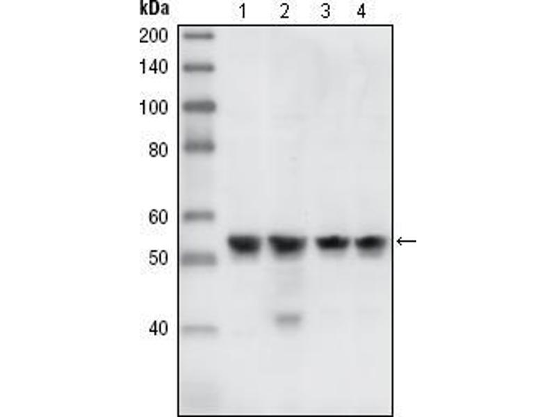 Western Blotting (WB) image for anti-CHEK1 antibody (Checkpoint Kinase 1) (ABIN969476)