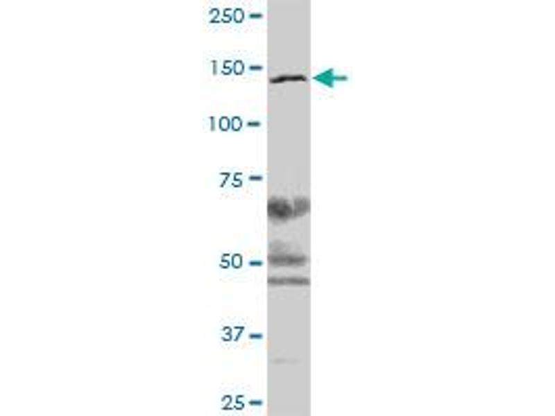 Western Blotting (WB) image for anti-Structural Maintenance of Chromosomes 3 (SMC3) (AA 1-1217) antibody (ABIN522580)