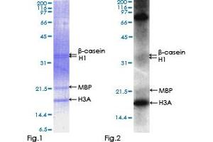 Western Blotting (WB) image for Vaccinia Related Kinase 2 (VRK2) (AA 1-508), (full length) protein (GST tag) (ABIN1325113)