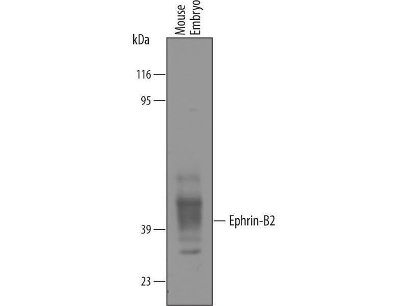 Western Blotting (WB) image for anti-Ephrin B2 (EFNB2) (AA 27-227) antibody (ABIN4900008)