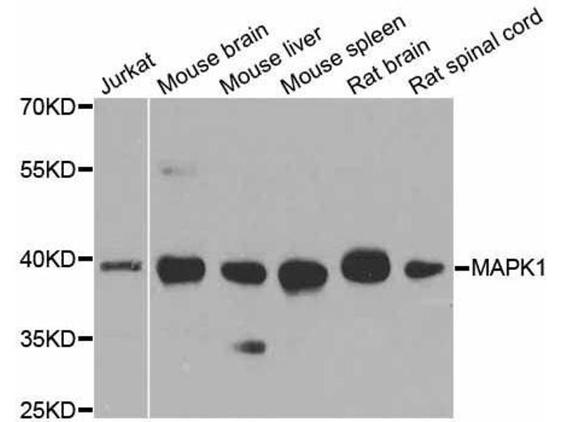 Western Blotting (WB) image for anti-Mitogen-Activated Protein Kinase 1 (MAPK1) antibody (ABIN6143516)
