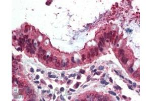 Image no. 3 for anti-Ezrin (EZR) (Internal Region) antibody (ABIN185664)