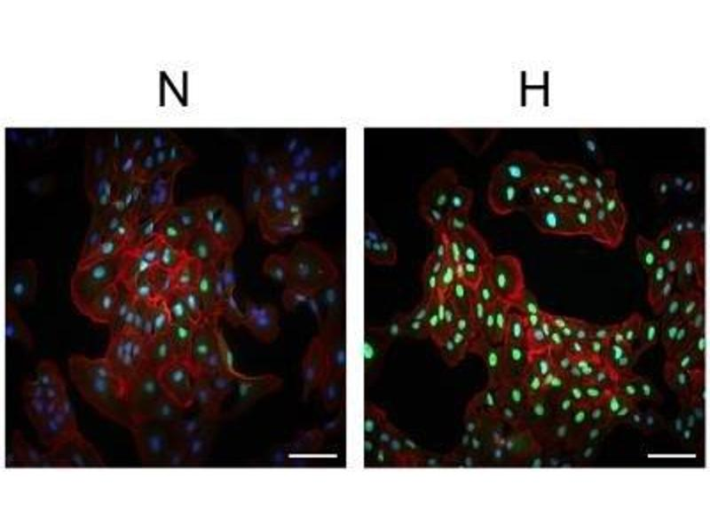 Immunofluorescence (IF) image for anti-Hypoxia Inducible Factor 1, alpha Subunit (Basic Helix-Loop-Helix Transcription Factor) (HIF1A) (Internal Region) antibody (ABIN151066)