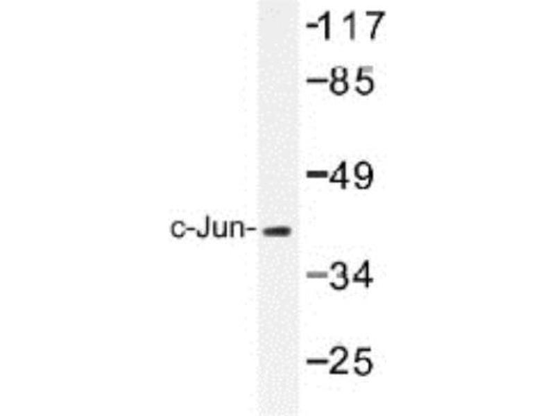 Western Blotting (WB) image for anti-Jun Proto-Oncogene (JUN) antibody (ABIN408116)