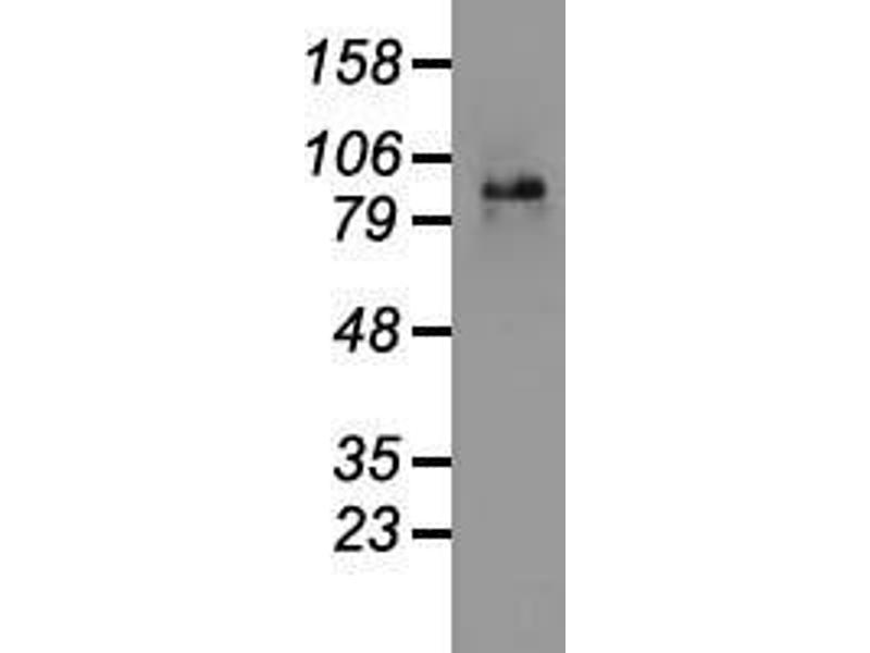 Western Blotting (WB) image for anti-CTNNB1 antibody (Catenin (Cadherin-Associated Protein), beta 1, 88kDa) (AA 531-781) (ABIN2452237)