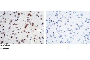 Immunohistochemistry (IHC) image for anti-IL1A antibody (Interleukin 1 alpha) (AA 115-270) (ABIN2000379)