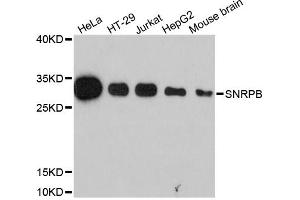 Image no. 1 for anti-Small Nuclear Ribonucleoprotein Polypeptides B and B1 (SNRPB) antibody (ABIN6569045)