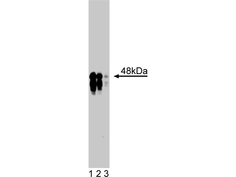 Western Blotting (WB) image for anti-Inhibitor of kappa Light Polypeptide Gene Enhancer in B-Cells, Kinase gamma (IKBKG) (AA 278-396) antibody (ABIN968464)