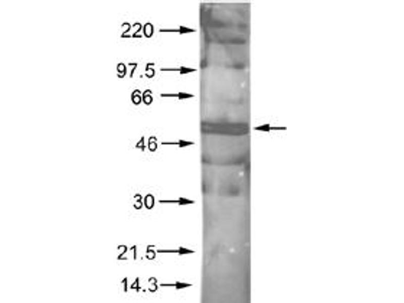 Western Blotting (WB) image for anti-AKT antibody (V-Akt Murine Thymoma Viral Oncogene Homolog 1) (AA 460-480) (ABIN153477)