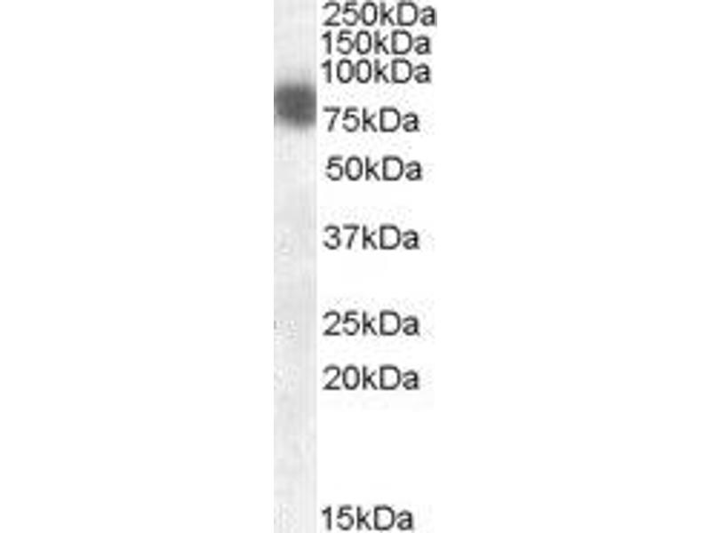 Western Blotting (WB) image for anti-Cortactin (CTTN) (N-Term) antibody (ABIN2561960)