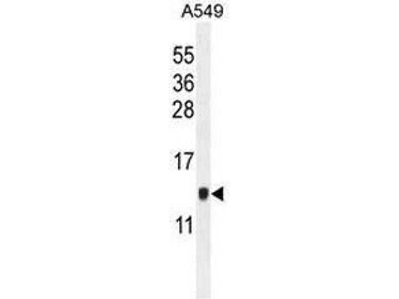 Western Blotting (WB) image for anti-Keratinocyte Associated Protein 2 (KRTCAP2) (AA 131-162), (C-Term) antibody (ABIN953121)