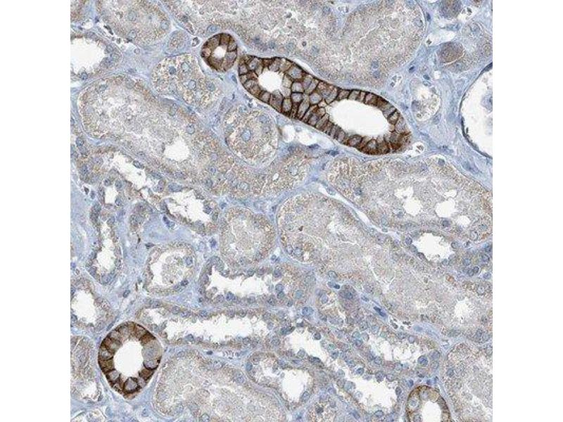 Immunohistochemistry (Paraffin-embedded Sections) (IHC (p)) image for anti-RASA4 抗体 (RAS P21 Protein Activator 4) (ABIN4349399)