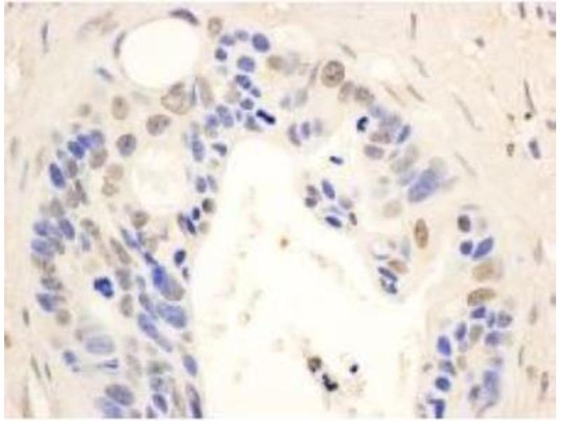 Immunohistochemistry (Paraffin-embedded Sections) (IHC (p)) image for anti-Signal Transducer and Activator of Transcription 6, Interleukin-4 Induced (STAT6) (AA 600-650) antibody (ABIN153168)