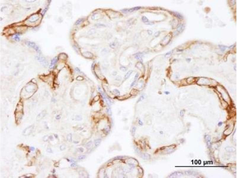 Immunohistochemistry (Paraffin-embedded Sections) (IHC (p)) image for anti-Epidermal Growth Factor Receptor (EGFR) (AA 1100-1150) antibody (ABIN152027)