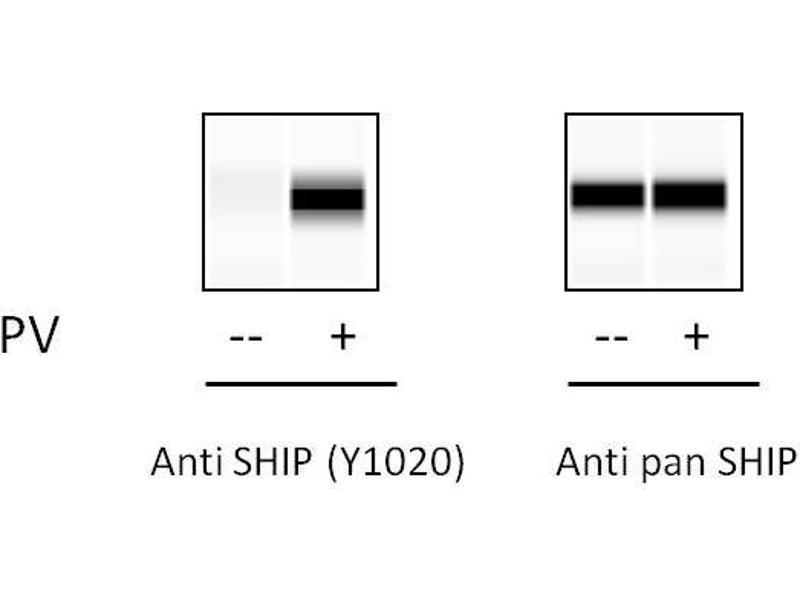 Inositol Polyphosphate-5-Phosphatase, 145kDa (INPP5D) ELISA Kit (3)