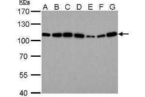 Image no. 6 for anti-Actinin, alpha 4 (ACTN4) (C-Term) antibody (ABIN2855119)