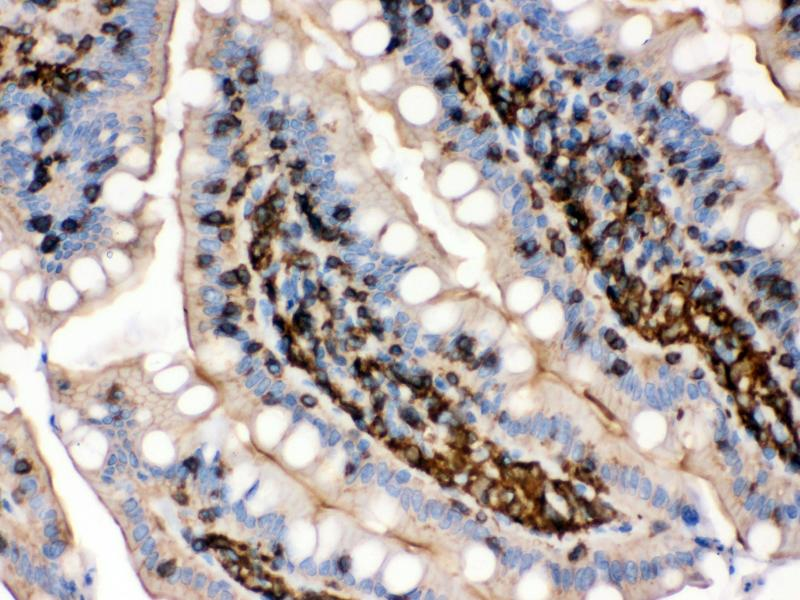 Immunohistochemistry (IHC) image for anti-Actin, beta (ACTB) (Cytosolic), (N-Term) antibody (ABIN3044484)