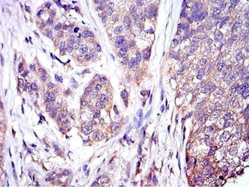 Immunohistochemistry (IHC) image for anti-MAPK3 antibody (Mitogen-Activated Protein Kinase 3) (ABIN969277)
