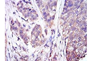 Immunohistochemistry (IHC) image for anti-Mitogen-Activated Protein Kinase 3 (MAPK3) antibody (ABIN969277)
