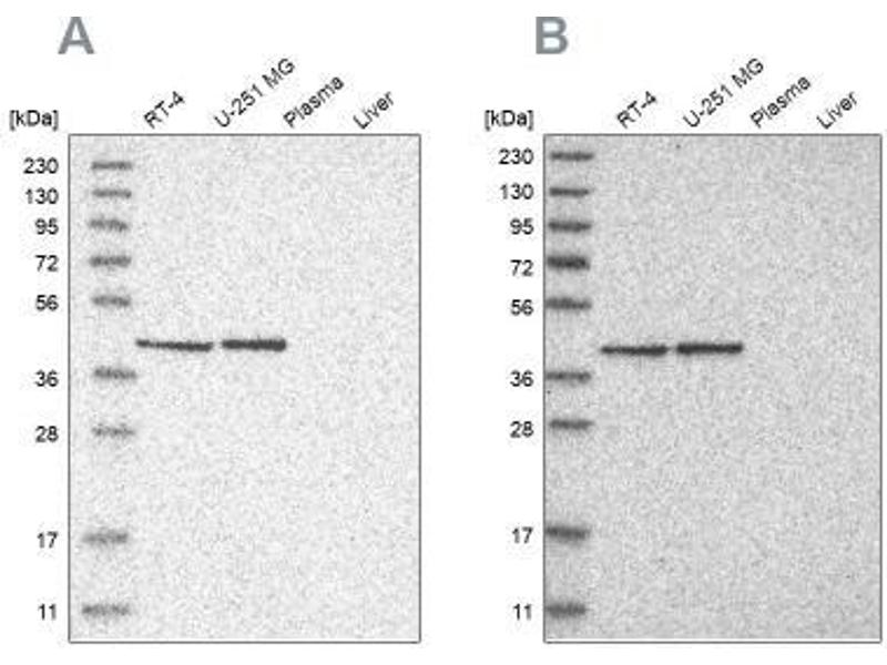 Western Blotting (WB) image for anti-Era G-Protein-Like 1 (E. Coli) (ERAL1) antibody (ABIN4316440)