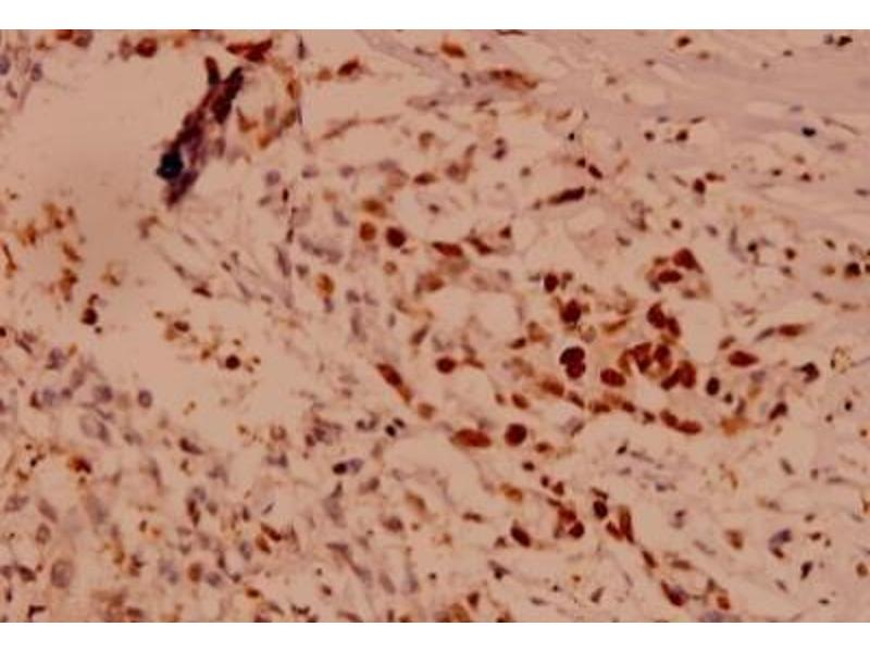 Immunohistochemistry (Paraffin-embedded Sections) (IHC (p)) image for anti-Caspase 10 antibody (Caspase 10, Apoptosis-Related Cysteine Peptidase) (ABIN407612)