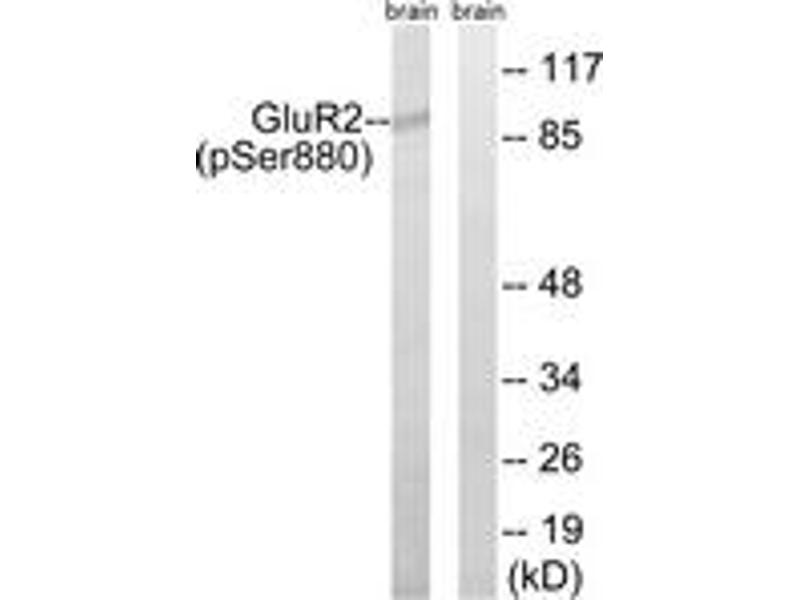 Western Blotting (WB) image for anti-Glutamate Receptor, Ionotropic, AMPA 2 (GRIA2) (AA 834-883), (pSer880) antibody (ABIN1531853)