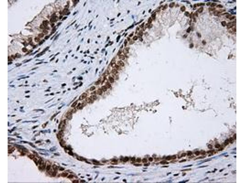 Immunohistochemistry (IHC) image for anti-SHC1 antibody (SHC (Src Homology 2 Domain Containing) Transforming Protein 1) (ABIN2453637)