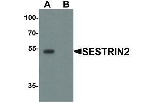 Image no. 1 for anti-Sestrin 2 (SESN2) (Internal Region) antibody (ABIN6656384)