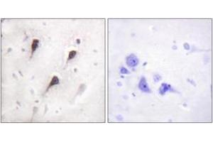 Immunohistochemistry (IHC) image for anti-WAS Protein Family, Member 1 (WASF1) (AA 91-140) antibody (ABIN1532430)