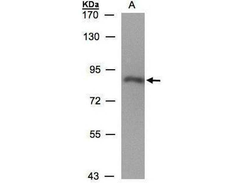 Western Blotting (WB) image for anti-P450 (Cytochrome) Oxidoreductase (POR) (N-Term) antibody (ABIN2854935)