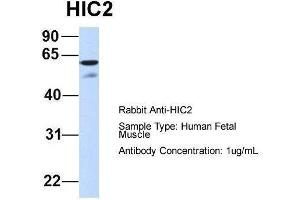 Image no. 1 for anti-Hypermethylated in Cancer 2 (HIC2) (Middle Region) antibody (ABIN2777438)